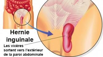 Cure de hernie inguinale : quelle est la meilleure approche ?