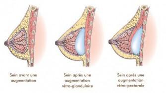 La pose de prothèses mammaires