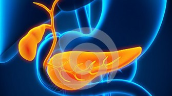 Résection d'un cancer de la vésicule biliaire avec métastase hépatique après chimiothérapie néoadjuvante à base de Gemcitabine