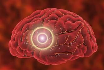 Migraines : nouvelles études, nouvelles perspectives de guérison...