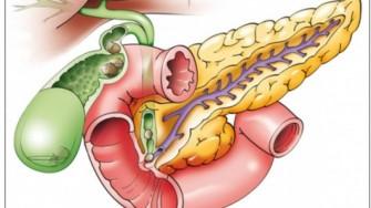 Carcinome des voies biliaires avancés et/ou métastatiques : survie globale améliorée par l'association cisplatine gemcitabine.
