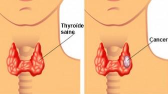 Quelle imagerie recommander dans la recherche de métastases dans le cancer médullaire de la thyroïde