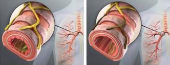 Bronchopneumopathie chronique obstructive (BPCO)
