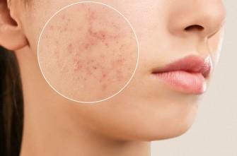 Traiter les cicatrices d'acné