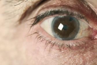 Nécessité d'inclure le glaucome dans la nomenclature des maladies chroniques
