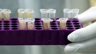 Nouveaux gènes impliqués dans les tumeurs sporadiques du cancer médullaire de la thyroïde