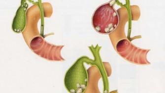 Comment aborder chirurgicalement les cholécystites aiguës ?