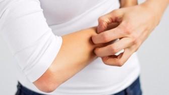 Nouvelle étude : l'eczéma pourrait causer des maladies cardiovasculaires