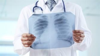 La tuberculose reste la principale cause infectieuse de mortalité dans le monde selon l'OMS
