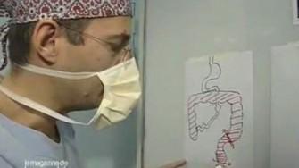 Chirurgie de la Recto-Colite Hémorragique : qui fait le plus fait le mieux