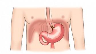 Un cancer oesogastrique avec une lame d'ascite à l'échoendoscopie est le plus souvent inopérable
