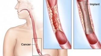 La myotomie de Heller dans le mégaoesophage expose-t-elle au cancer ?