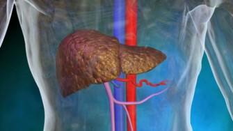 Le drainage des abcès du foie de plus de 5 cm doit-il être percutané ou chirurgical ?