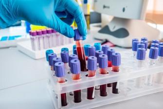 Un test sanguin détecte 8 types de cancers avant lapparition des symptômes