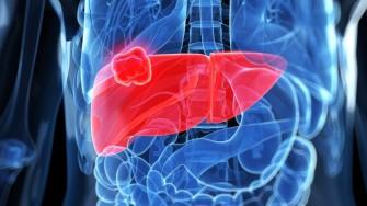 Tumeurs du foie et radiofréquence