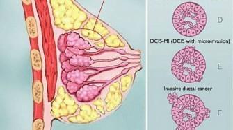 Les carcinomes du sein triple négatif