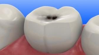 La carie dentaire