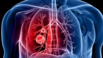 Une nouvelle classification TNM des cancers bronchiques  non à petites cellules