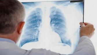 La tuberculose extra pulmonaire : prévention et traitement
