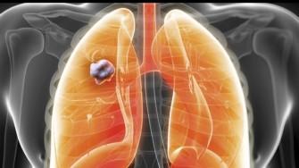 Cancer du poumon : Les thérapies ciblées en action