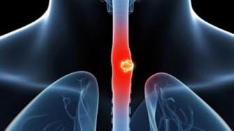 Détection des adénopathies du cancer de l'oesophage : un cri d'alarme resté lettre morte !