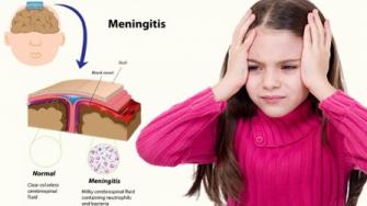 La méningite