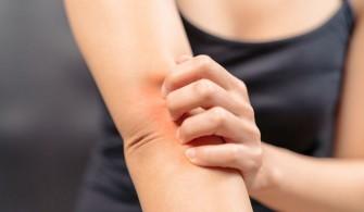Les allergies  les plus courantes