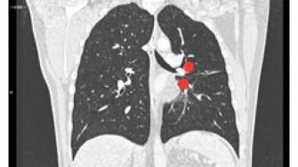 Y a-t-il une place pour les anti-angiogéniques dans les tumeurs carcinoïdes ?