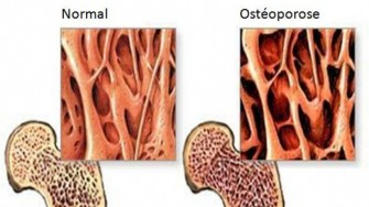 Ostéoporose et perte de masse osseuse