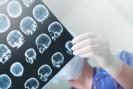 L'IRM quantitative : prédire la sortie de coma après un arrêt cardiaque