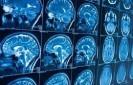 Chimie du cerveau lors du sommeil